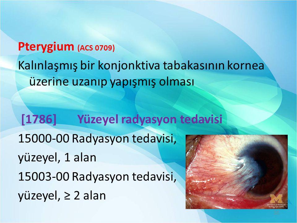 Pterygium (ACS 0709) Kalınlaşmış bir konjonktiva tabakasının kornea üzerine uzanıp yapışmış olması [1786] Yüzeyel radyasyon tedavisi 15000-00 Radyasyon tedavisi, yüzeyel, 1 alan 15003-00 Radyasyon tedavisi, yüzeyel, ≥ 2 alan